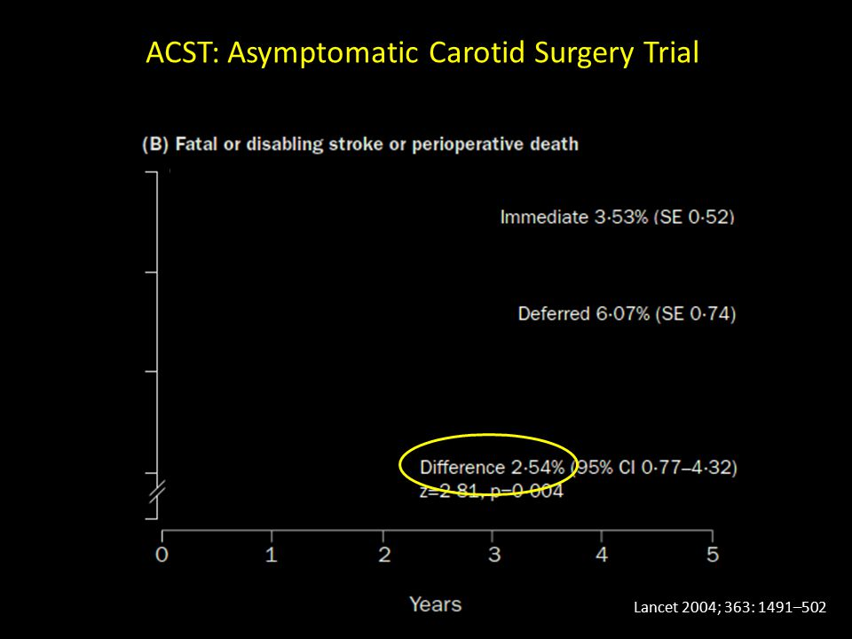 ACST: Asymptomatic Carotid Surgery Trial Lancet 2004; 363: 1491–502