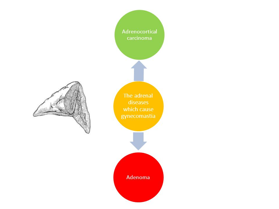The adrenal diseases which cause gynecomastia Adrenocortical carcinoma Adenoma