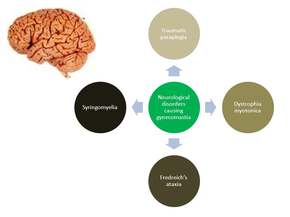 Neurological disorders causing gynecomastia Traumatic paraplegia Dystrophia myotonica Fredreich's ataxia Syringomyelia