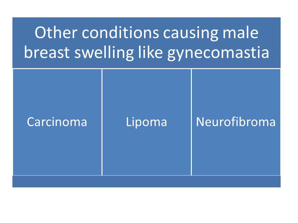 Other conditions causing male breast swelling like gynecomastia CarcinomaLipomaNeurofibroma