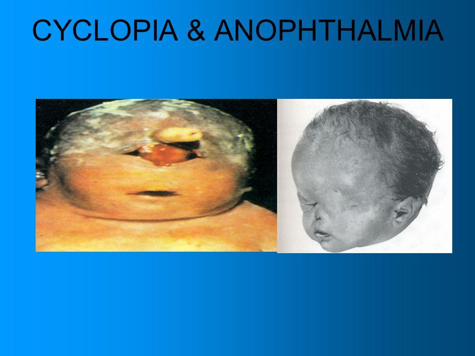 CYCLOPIA & ANOPHTHALMIA