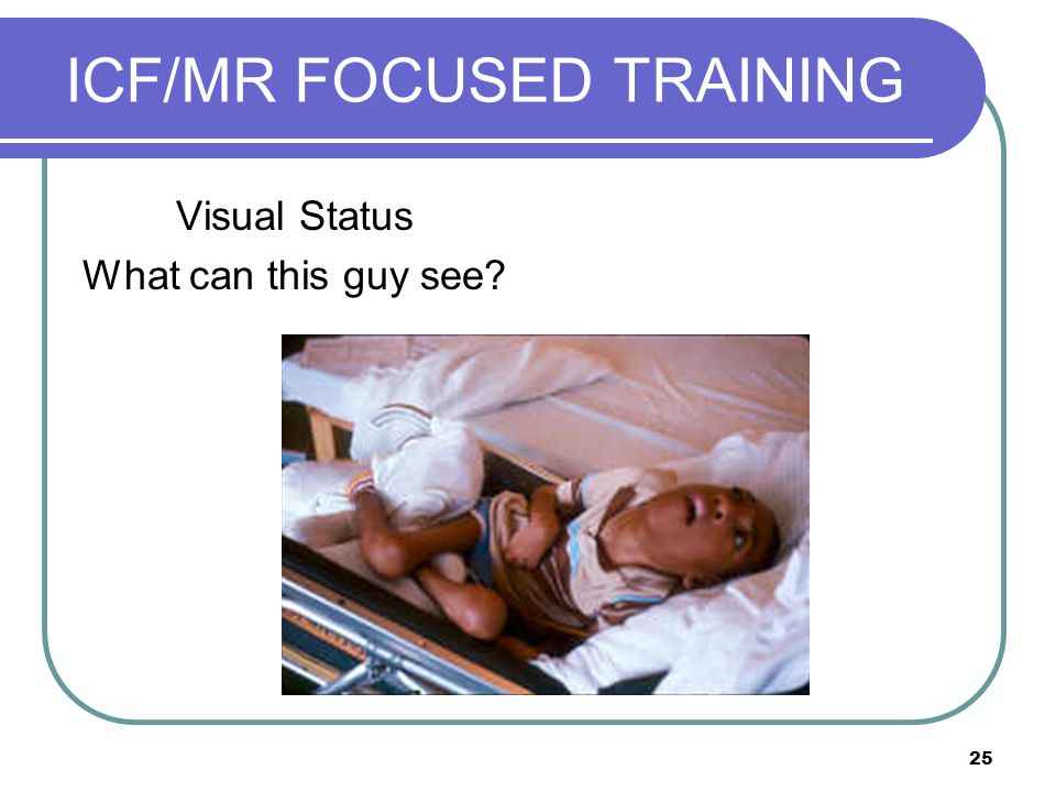 25 ICF/MR FOCUSED TRAINING Visual Status What can this guy see?