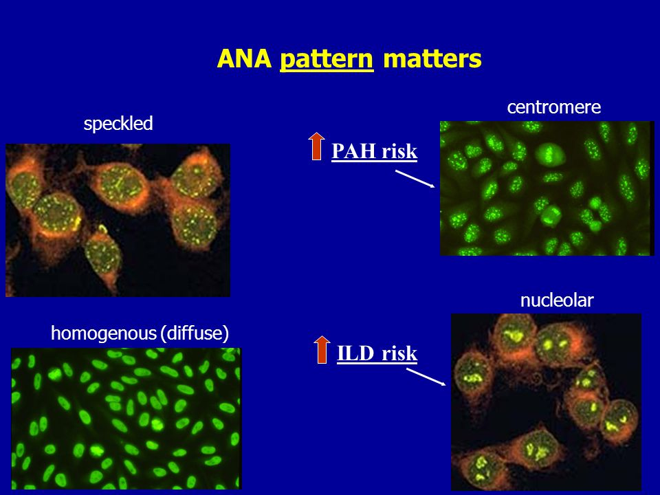 Antibodies as clues to phenotype, organ involvement, prognosis dcSScdcSSc –ANA positive 40-90% with nucleolar pattern on ANA –Scl-70 (anti-topoisomerase 1) with low sensitivity / high specificity for diffuse disease –RNA Polymerase III - most severe skin involv., highest freq of renal crisis, best overall prognosis –U3 RNP - diffuse but with PAH +/- ILD, skeletal and cardiac muscle inv lcSSclcSSc –centromere ANA very specific for CREST/limited disease in up to 90% of pts; PAH –U1 RNP – MCTD with SSc phenotype, risk of PAH –Th/To - PAH +/- ILD; more pulm fibrosis and renal crisis than anti-centromere+ pts Arthritis Rheum.