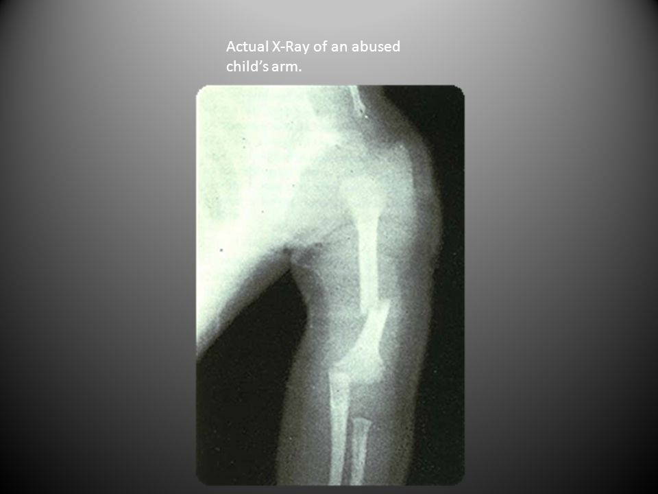 Actual X-Ray of an abused child's arm.