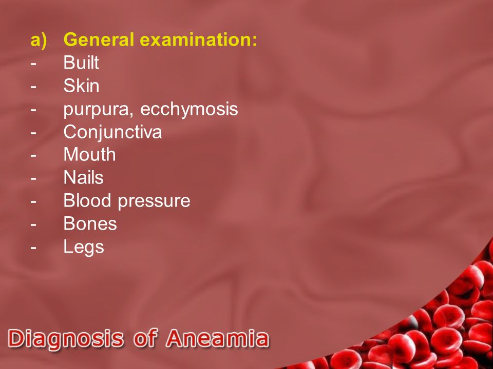 a)General examination: -Built -Skin -purpura, ecchymosis -Conjunctiva -Mouth -Nails -Blood pressure -Bones -Legs