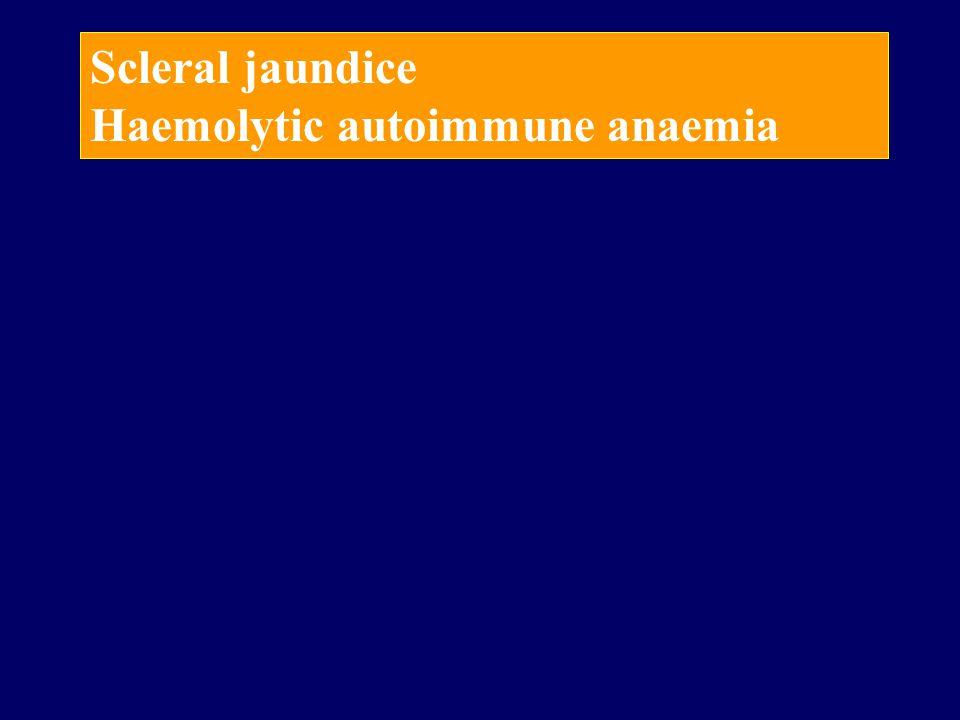 Scleral jaundice Haemolytic autoimmune anaemia