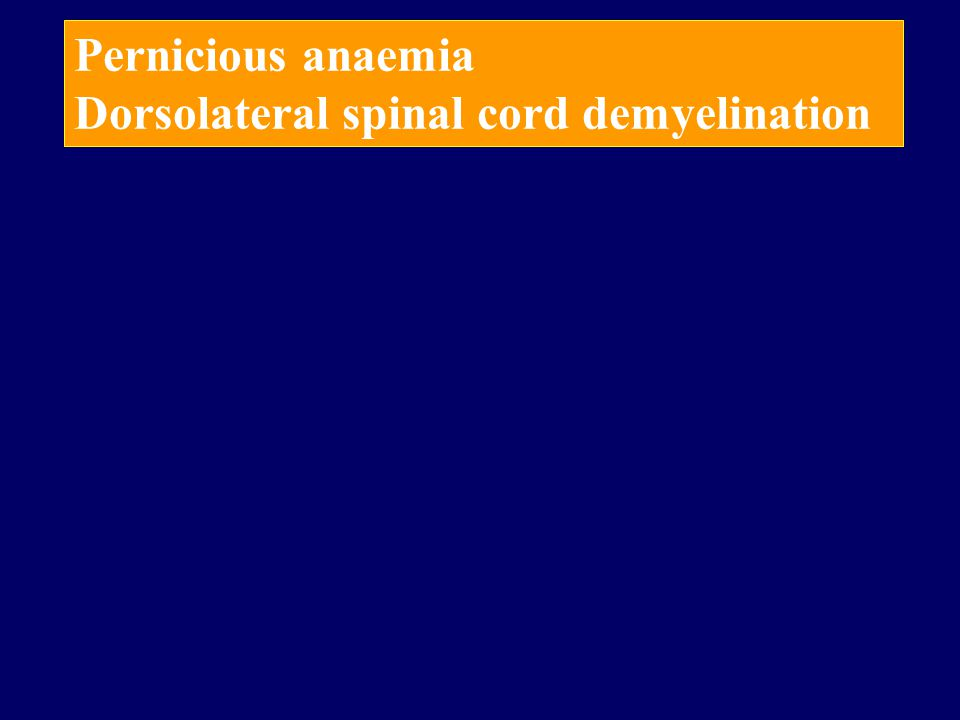 Pernicious anaemia Dorsolateral spinal cord demyelination