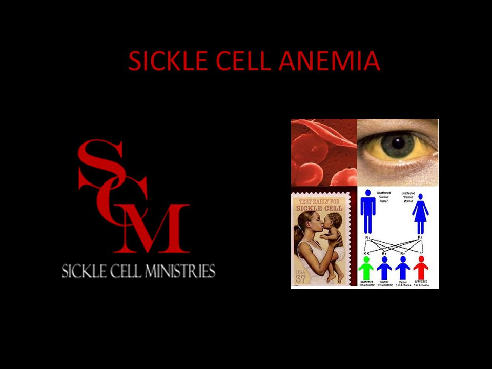 What is Sickle Cell Anemia.