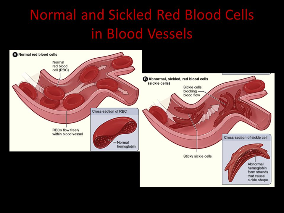Sickle Cell Anemia vs.