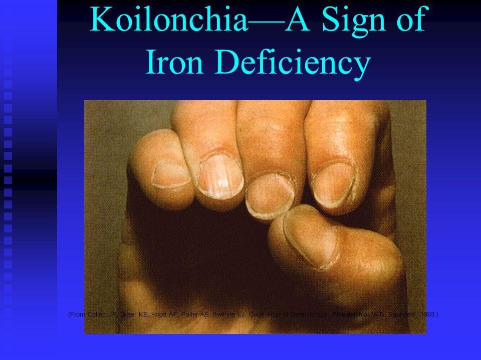 Koilonchia—A Sign of Iron Deficiency (From Callen JP, Greer KE, Hood AF, Paller AS, Swinyer LJ.