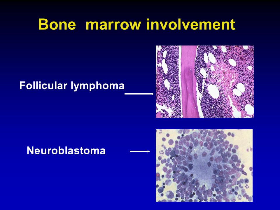 Bone marrow involvement Follicular lymphoma Neuroblastoma