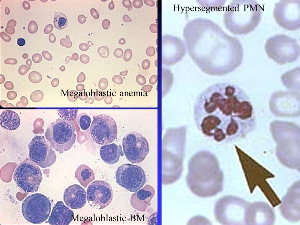 Megaloblastic anemia Megaloblastic BM Hypersegmented PMN