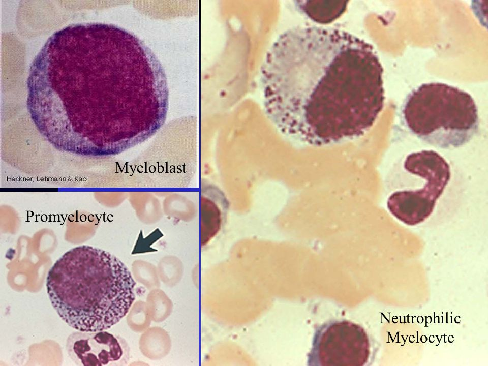 Myeloblast Promyelocyte Neutrophilic Myelocyte
