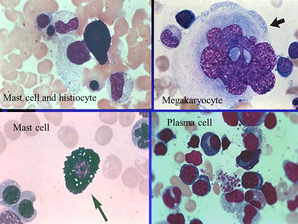 Mast cell and histiocyte Megakaryocyte Plasma cell Mast cell