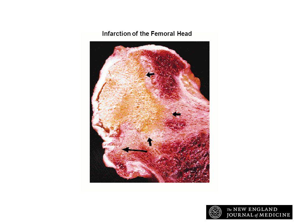 McMahon, L. E.C. et. al. N Engl J Med 1997;337:1293-1301 Infarction of the Femoral Head