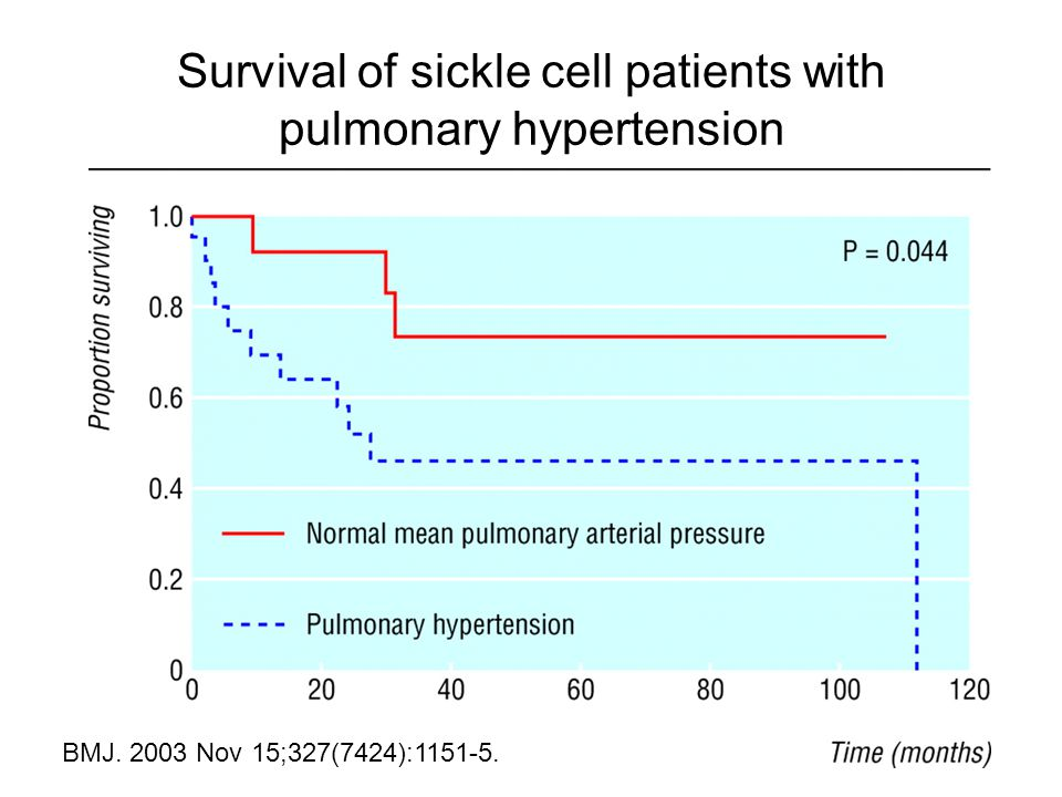 Survival of sickle cell patients with pulmonary hypertension BMJ. 2003 Nov 15;327(7424):1151-5.