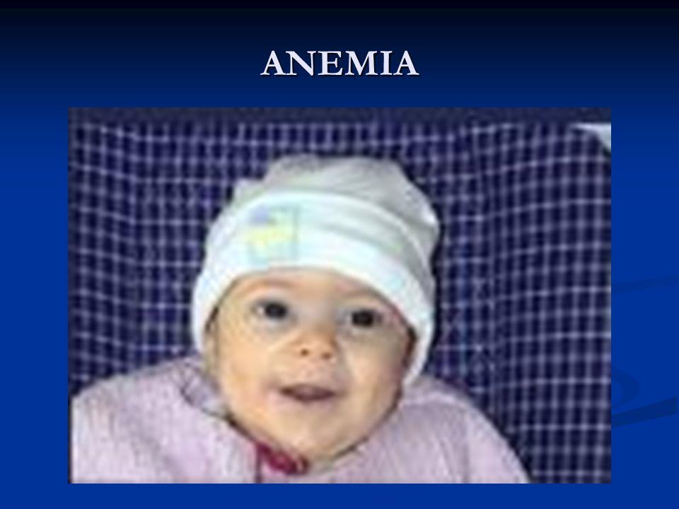  THALASSEMIA Healthy infants have four  globin genes.