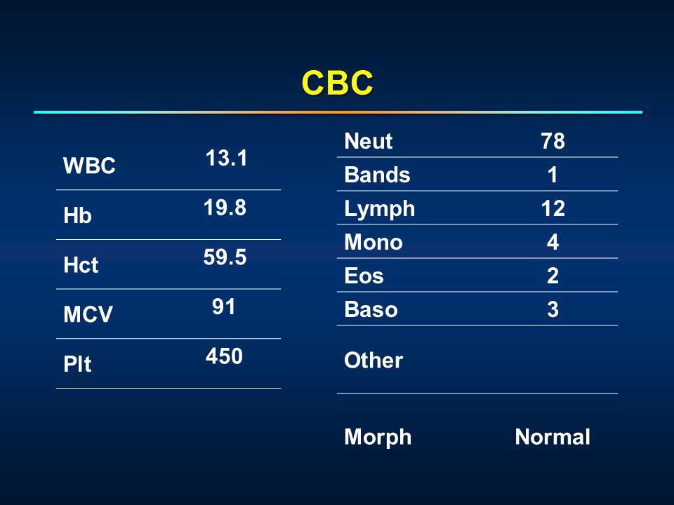 WBC 13.1 Hb 19.8 Hct 59.5 MCV 91 Plt 450 Neut78 Bands1 Lymph12 Mono4 Eos2 Baso3 Other MorphNormal CBC