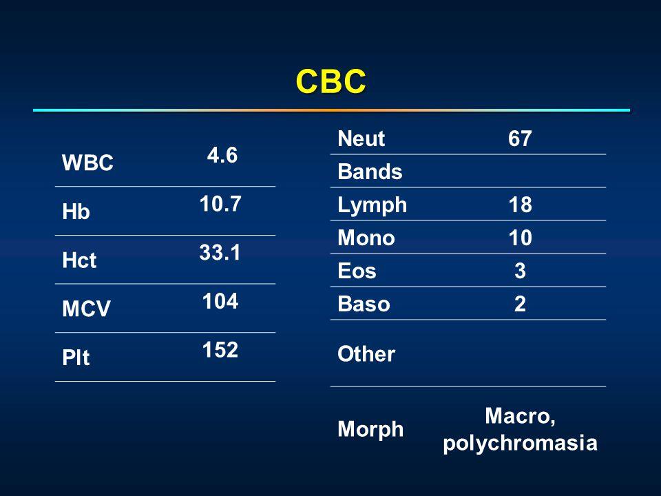 WBC 4.6 Hb 10.7 Hct 33.1 MCV 104 Plt 152 Neut67 Bands Lymph18 Mono10 Eos3 Baso2 Other Morph Macro, polychromasia CBC