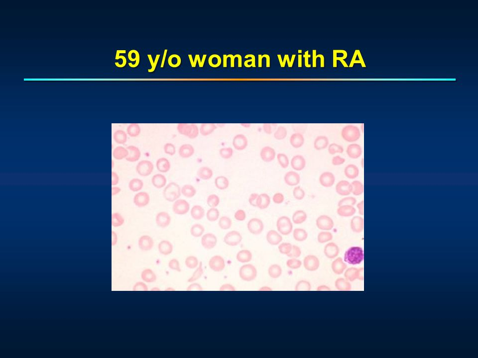 56 y/o with intermittent anemia Osmotic fragility ordered.