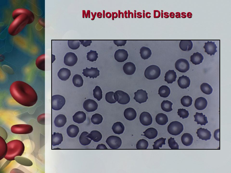 Myelophthisic Disease