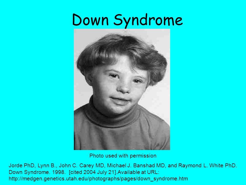 Down Syndrome Photo used with permission Jorde PhD, Lynn B., John C.