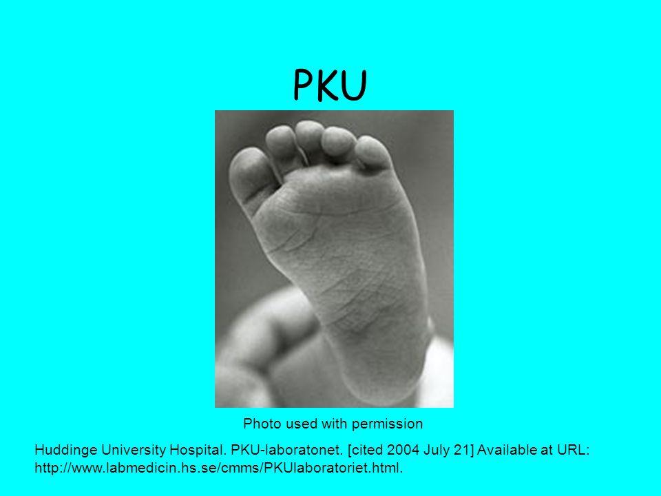PKU Photo used with permission Huddinge University Hospital.