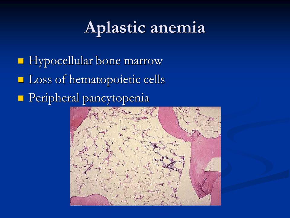 Aplastic anemia Hypocellular bone marrow Hypocellular bone marrow Loss of hematopoietic cells Loss of hematopoietic cells Peripheral pancytopenia Peripheral pancytopenia