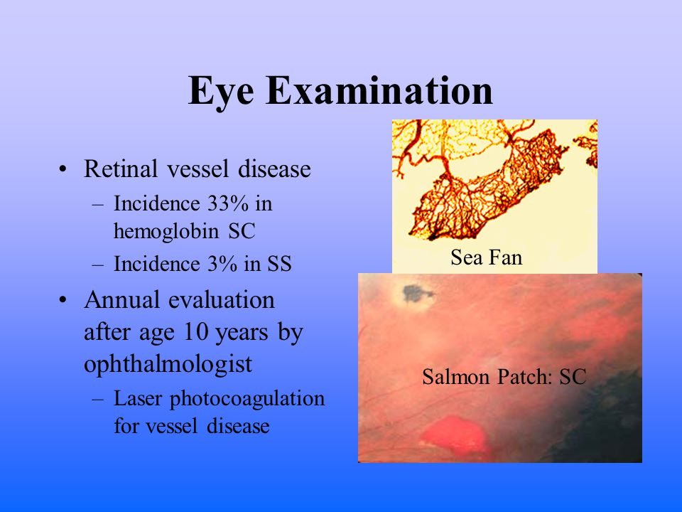 Eye Examination Retinal vessel disease –Incidence 33% in hemoglobin SC –Incidence 3% in SS Annual evaluation after age 10 years by ophthalmologist –Laser photocoagulation for vessel disease Sea Fan Salmon Patch: SC