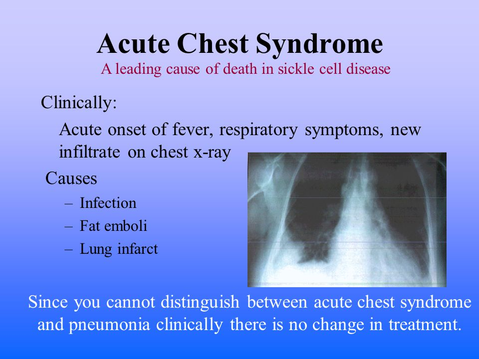 Acute Chest Syndrome Clinically: Acute onset of fever, respiratory symptoms, new infiltrate on chest x-ray Causes –Infection –Fat emboli –Lung infarct Since you cannot distinguish between acute chest syndrome and pneumonia clinically there is no change in treatment.