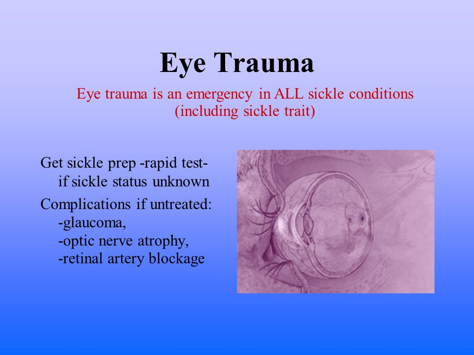 Eye Trauma Get sickle prep -rapid test- if sickle status unknown Complications if untreated: -glaucoma, -optic nerve atrophy, -retinal artery blockage Eye trauma is an emergency in ALL sickle conditions (including sickle trait)