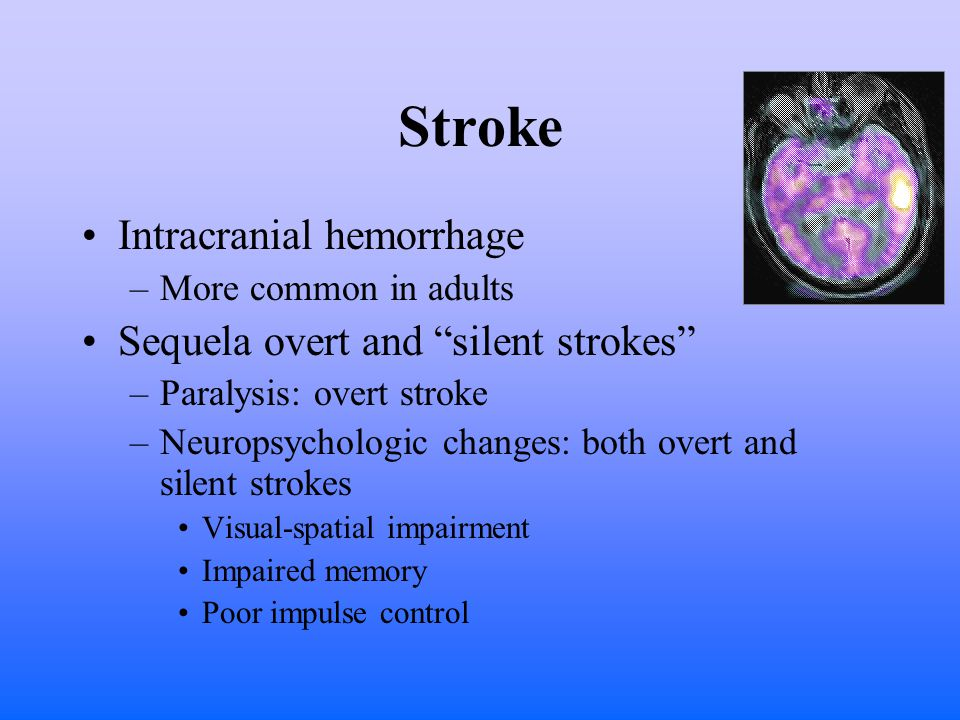 Stroke Intracranial hemorrhage –More common in adults Sequela overt and silent strokes –Paralysis: overt stroke –Neuropsychologic changes: both overt and silent strokes Visual-spatial impairment Impaired memory Poor impulse control