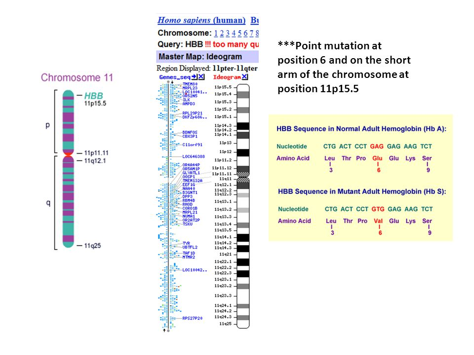 ***Point mutation at position 6 and on the short arm of the chromosome at position 11p15.5