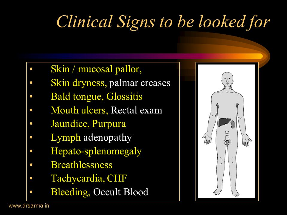 www.drsarma.in Clinical Signs to be looked for Skin / mucosal pallor, Skin dryness, palmar creases Bald tongue, Glossitis Mouth ulcers, Rectal exam Jaundice, Purpura Lymph adenopathy Hepato-splenomegaly Breathlessness Tachycardia, CHF Bleeding, Occult Blood