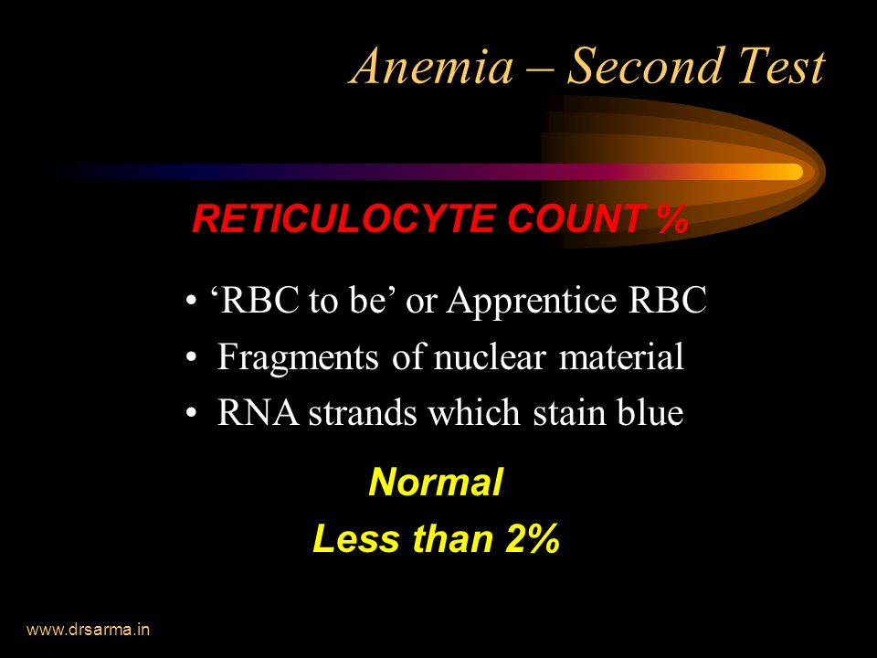 www.drsarma.in Anemia – Second Test RETICULOCYTE COUNT % Normal Less than 2% 'RBC to be' or Apprentice RBC Fragments of nuclear material RNA strands which stain blue