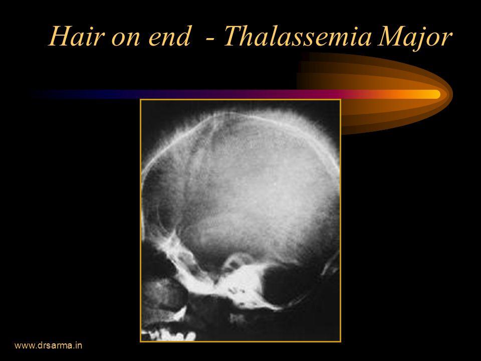 www.drsarma.in Hair on end - Thalassemia Major