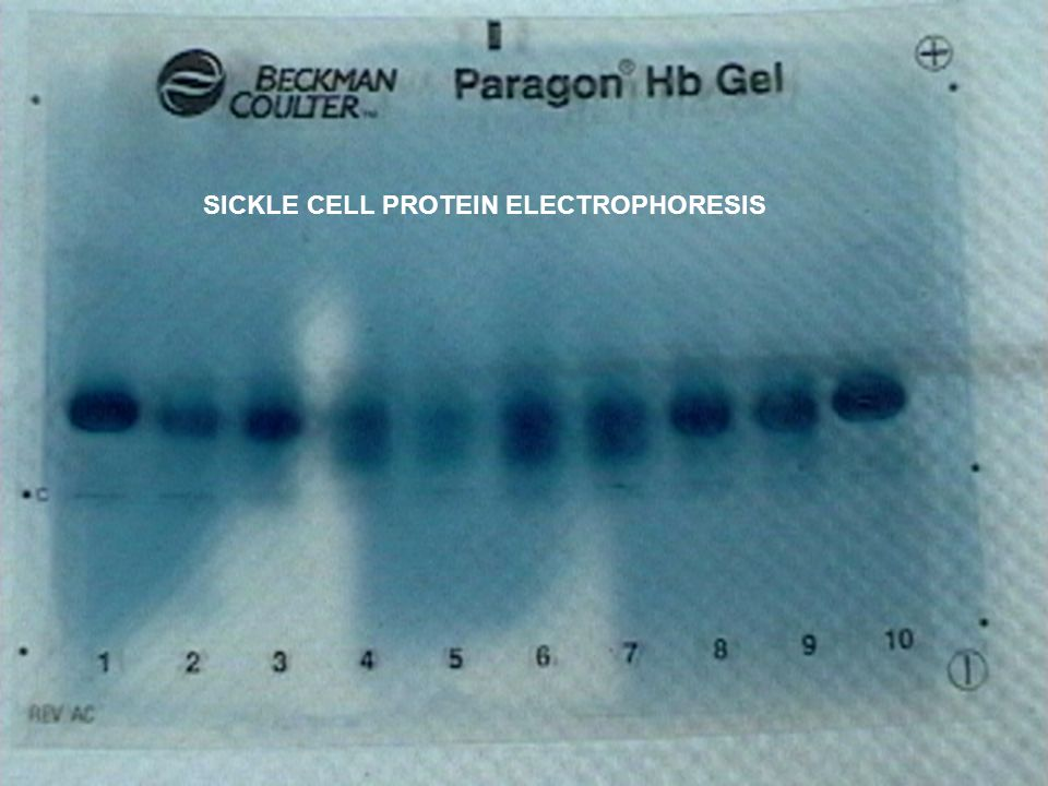 SICKLE CELL PROTEIN ELECTROPHORESIS