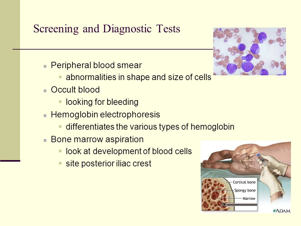 Screening and Diagnostic Tests Peripheral blood smear  abnormalities in shape and size of cells Occult blood  looking for bleeding Hemoglobin electr