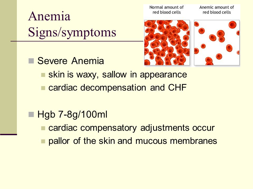 Anemia Signs/symptoms Severe Anemia skin is waxy, sallow in appearance cardiac decompensation and CHF Hgb 7-8g/100ml cardiac compensatory adjustments