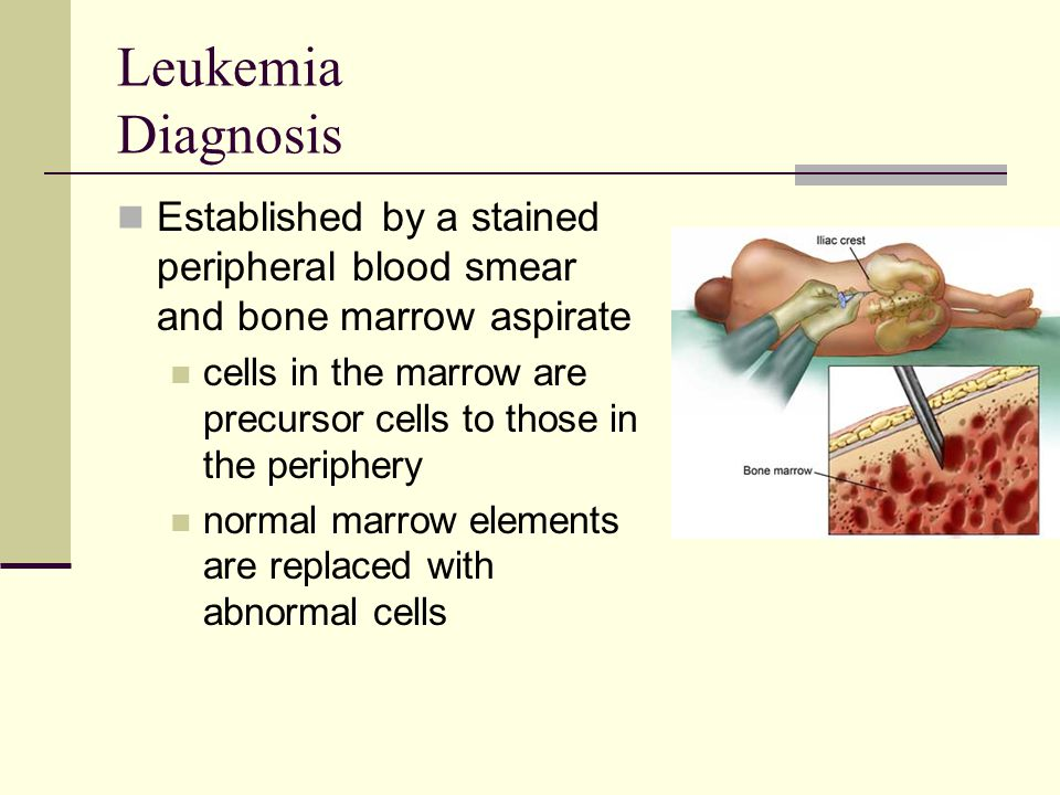 Leukemia Diagnosis Established by a stained peripheral blood smear and bone marrow aspirate cells in the marrow are precursor cells to those in the pe