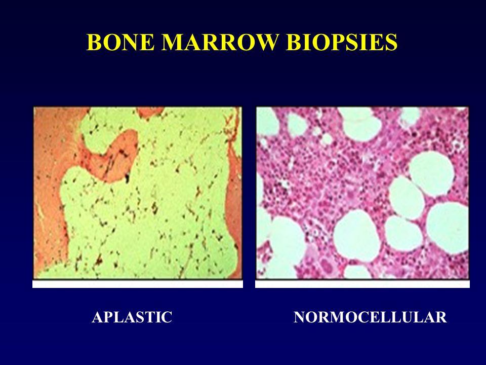 BONE MARROW BIOPSIES NORMOCELLULARAPLASTIC