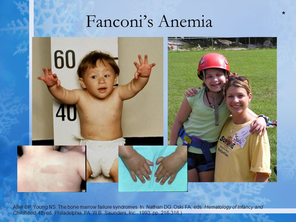 Fanconi's Anemia Alter BP, Young NS. The bone marrow failure syndromes.