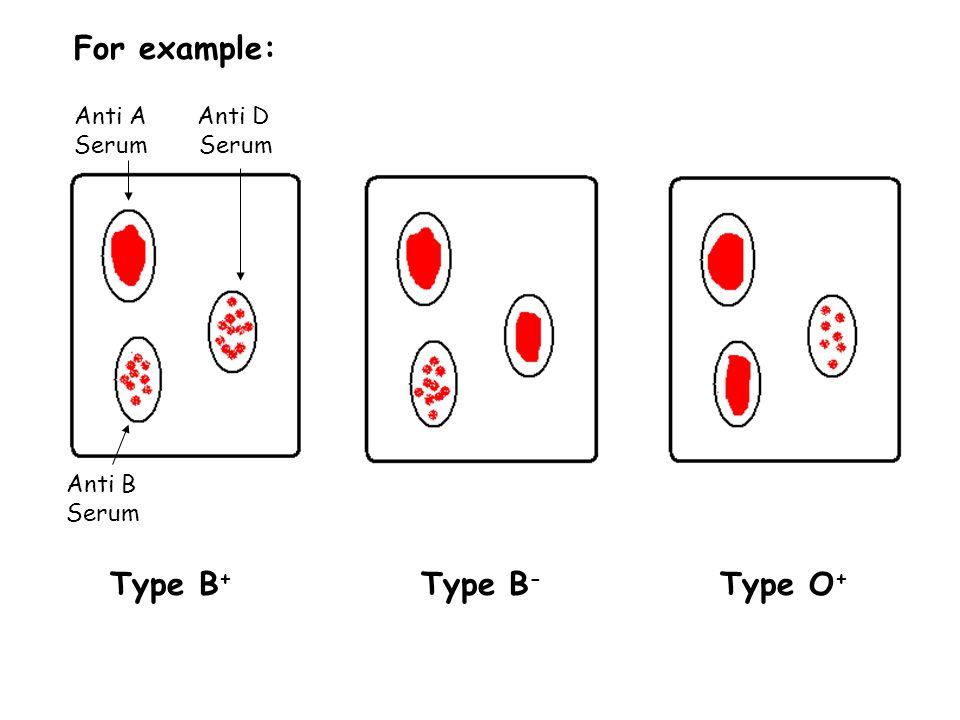For example: Anti A Anti D Serum Serum Anti B Serum Type B + Type B - Type O +