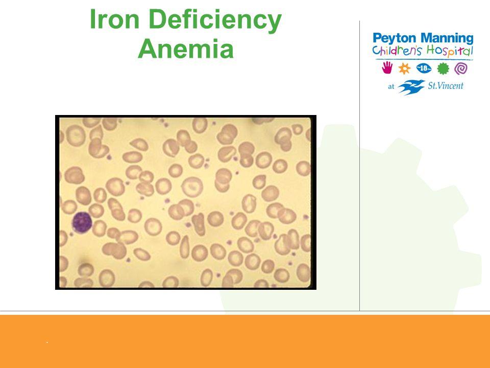 Iron Deficiency Anemia.