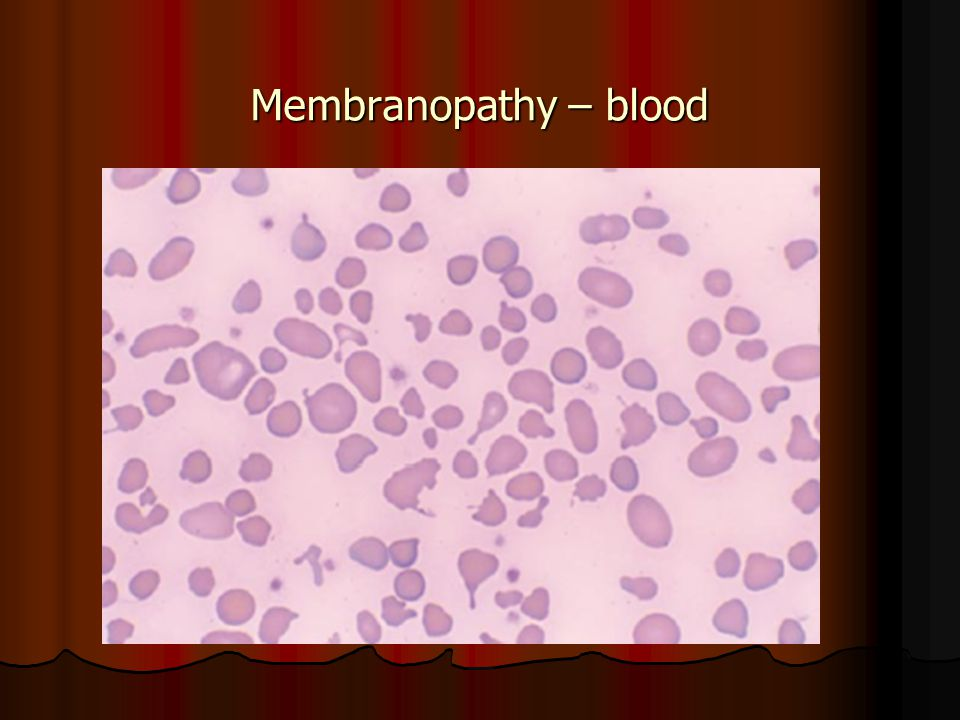 Membranopathy – blood