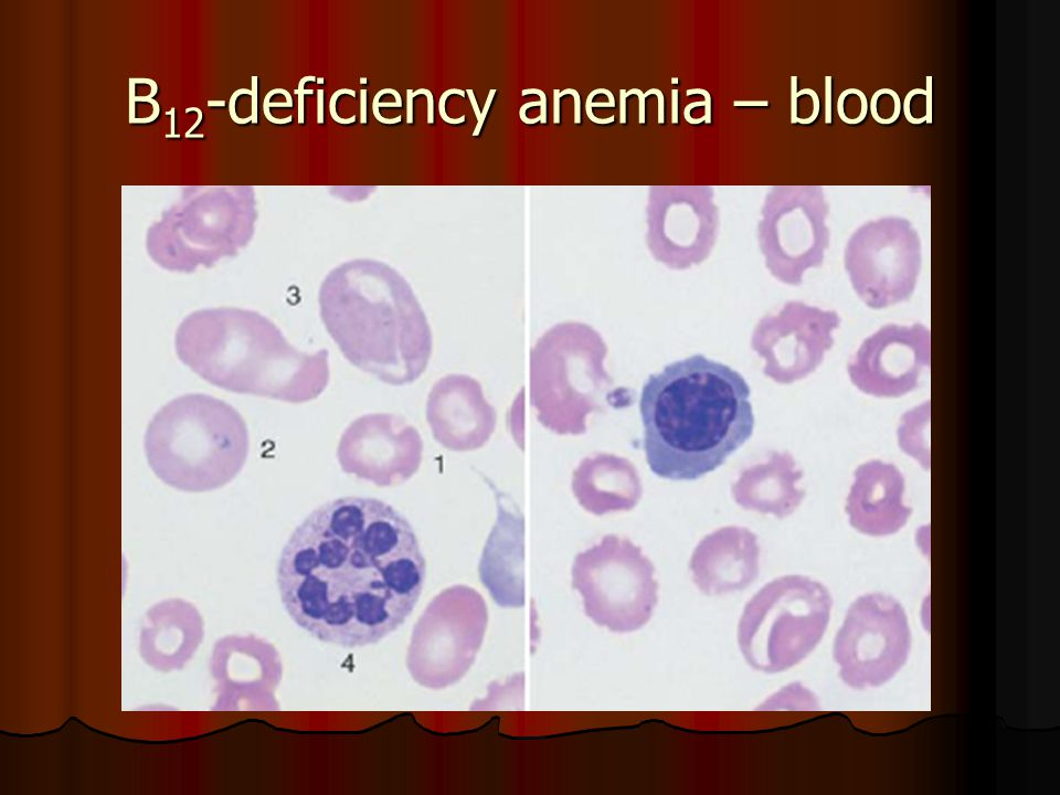В 12 -deficiency anemia – blood