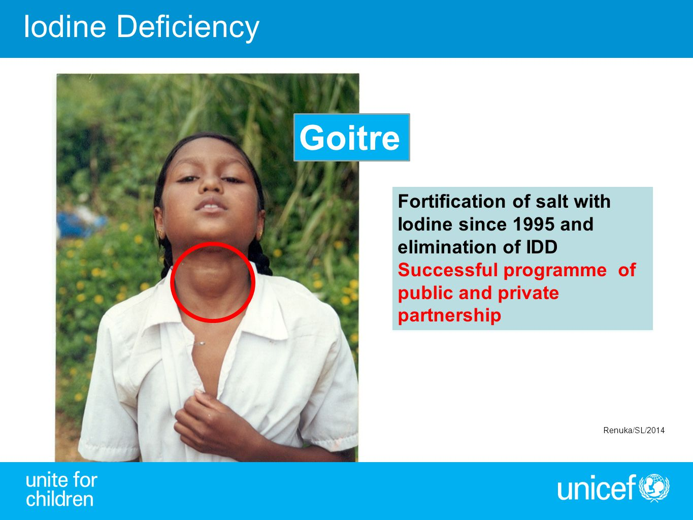 Fortification of salt with Iodine since 1995 and elimination of IDD Successful programme of public and private partnership Fortification of salt with