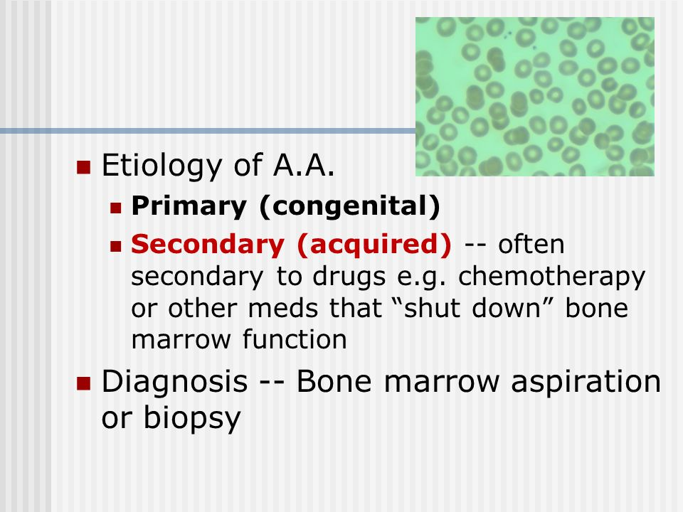 "Etiology of A.A. Primary (congenital) Secondary (acquired) -- often secondary to drugs e.g. chemotherapy or other meds that ""shut down"" bone marrow fu"