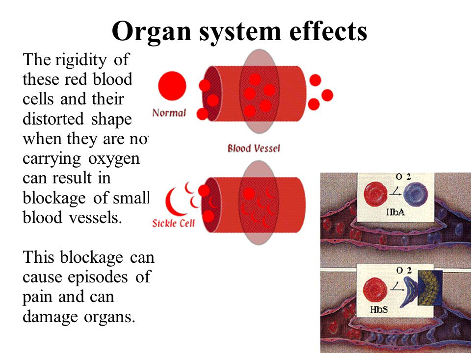 Organ system effects The rigidity of these red blood cells and their distorted shape when they are not carrying oxygen can result in blockage of small
