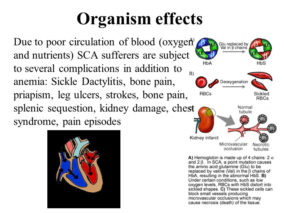 Organism effects Due to poor circulation of blood (oxygen and nutrients) SCA sufferers are subject to several complications in addition to anemia: Sic